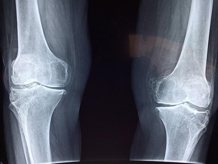 Češnjak zdravlje kostiju