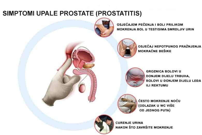 simptomi upale prostate