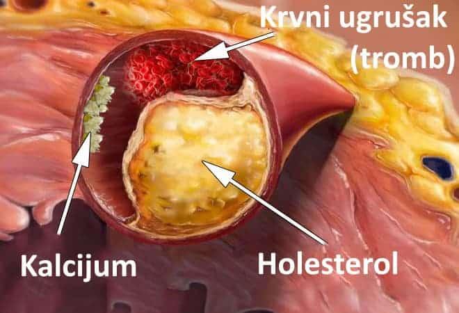 zacepljenje krvnih sudova